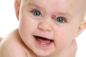 родимое пятно у новорожденного причины