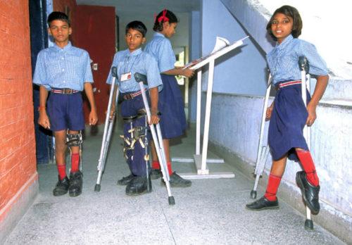 poliomielit-u-detej-simptomy-i-lechenie.jpg
