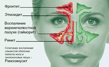 sinusit-u-rebenka-simptomy-i-lechenie.jpg