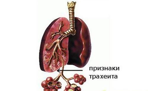 traheit-simptomy-i-lechenie-u-detej.jpg