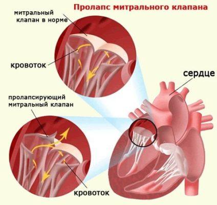 porok-serdca-u-rebenka-simptomy.jpg