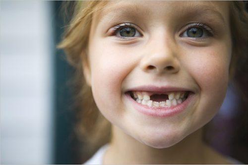 Когда выпадают молочные зубы у детей: схема выпадения