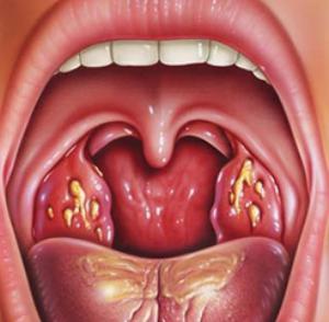 angina-u-rebenka-2-goda-kak-lechit.jpg