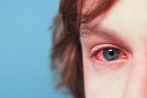 Конъюнктивит: симптомы и лечение у детей