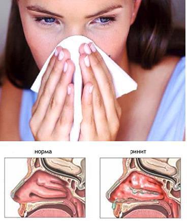 allergicheskij-rinit-u-rebenka-simptomy-i-lechenie.jpg