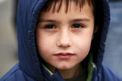 почему у ребёнка синяки под глазами