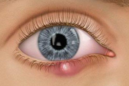 Ячмень на глазу у ребенка: как лечить