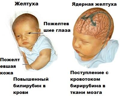 povyshennyj-bilirubin-u-novorozhdennyh-prichiny.jpg