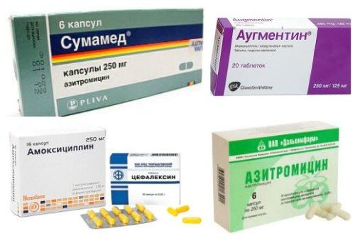 antibiotiki-dlya-detej-v-suspenzii-spisok.jpg
