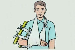 Первая помощь при переломах конечностей