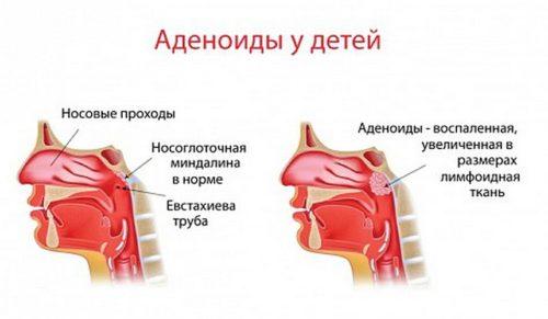 adenoidy-u-rebenka-3-goda-kak-lechit.jpg