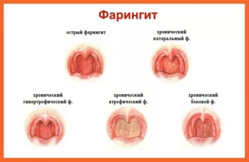 faringit-u-detej-simptomy-i-lechenie.jpg