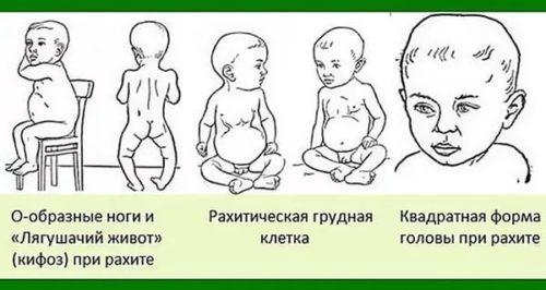 vitamin-d3-dlya-novorozhdennyh.jpg