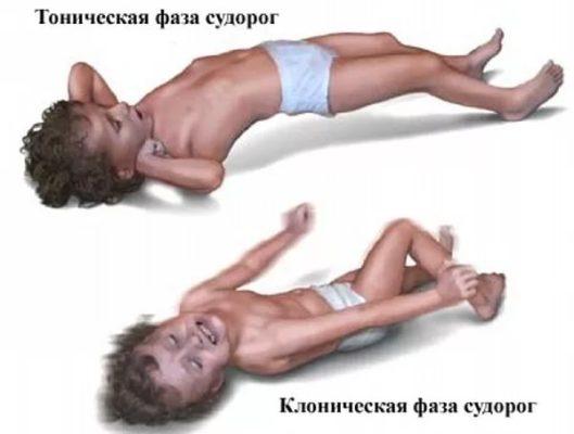 ehpilepsiya-u-detej-prichiny-vozniknoveniya.jpg