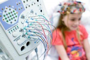 Эпилепсия у детей: причины возникновения