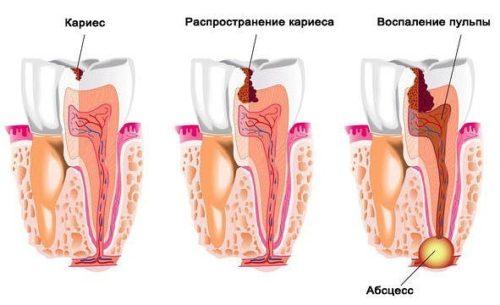 u-rebenka-bolit-zub-chem-obezbolit-v-domashnih-usloviyah.jpg