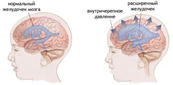 vnutricherepnoe-davlenie-u-rebenka-simptomy.jpg