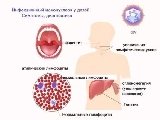 infekcionnyj-mononukleoz-u-rebenka-simptomy-i-lechenie.jpg