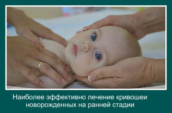 krivosheya-u-novorozhdennyh-lechenie.jpg