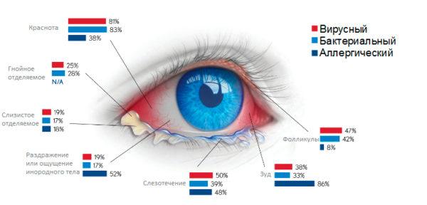 Симптомы конъюнктивита.jpg