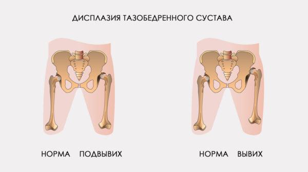 дисплазия тазобедренного сустава у детей.jpg
