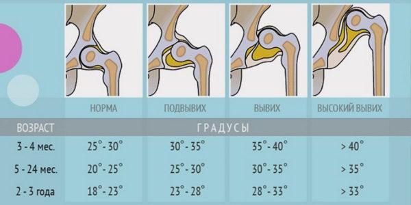 дисплазия тазобедренного сустава.jpg