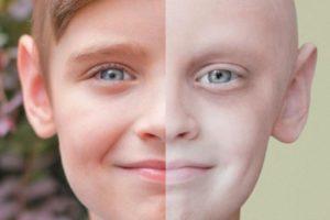 Лейкемия у детей: симптомы