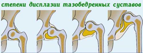 степени дисплазии тазобедренного сустава.jpg