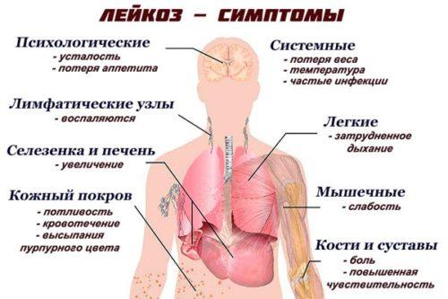 Лейкоз у детей: симптомы.jpg