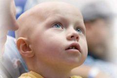 Лейкоз у детей: причины возникновения