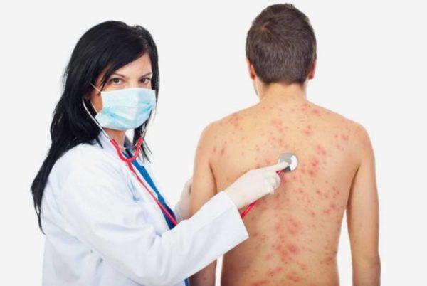 Стрептодермия у детей: как лечить.jpg