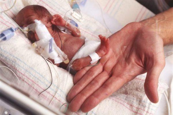 Недоношенный ребенок: последствия.jpg