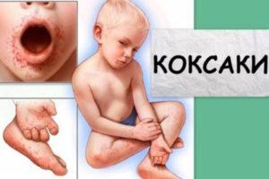 Вирус Коксаки: симптомы и лечение у детей