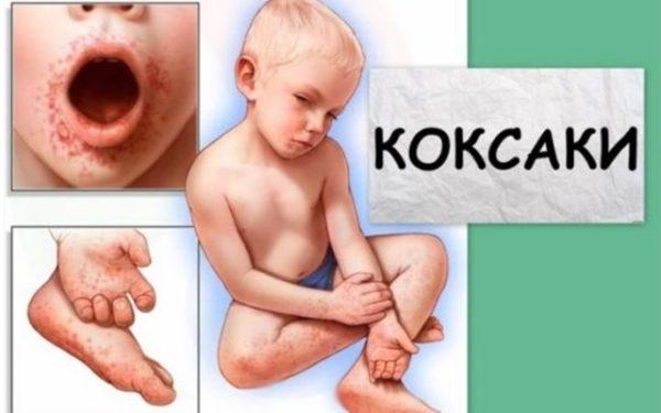 Коксаки вирус у детей