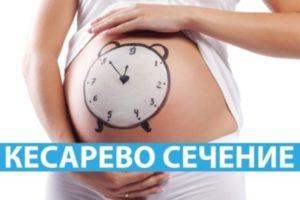 Кесарево сечение: плюсы и минусы для ребенка и мамы