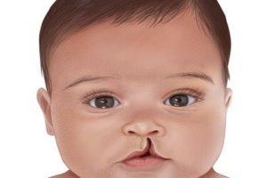 «Заячья губа» у новорожденных.jpg