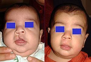 «Заячья губа» у новорожденных до и после операции.jpg