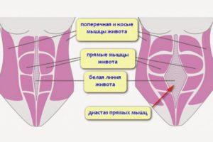 Диастаз после родов: что это такое и как лечить
